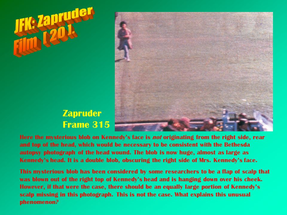 JFK: Zapruder Film [ 20 ]. Zapruder Frame 315